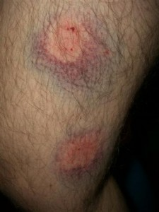 Jordi's leg bruises